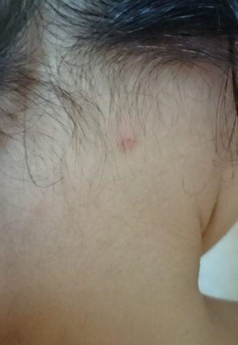 水疱瘡はどんな発疹が出る?