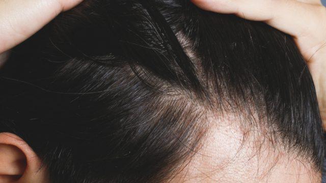【抜け毛予防はフェルサ】継続率90.1%の育毛サプリレビュー☆
